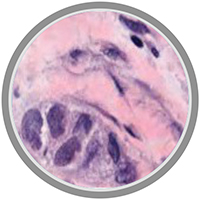 cancer tissue